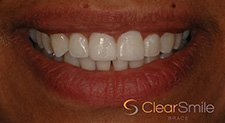 White Braces with clear brackets Leicester call 0116 2593386
