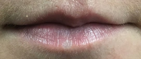 Lip Fillers Leicester Call 0116 259 3386 For a Free Consultation
