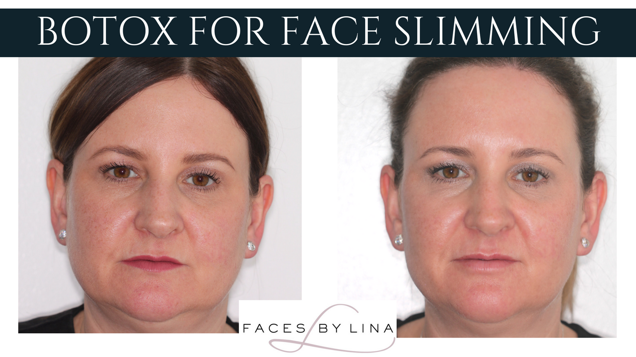 Before and after facial slimming with Botox