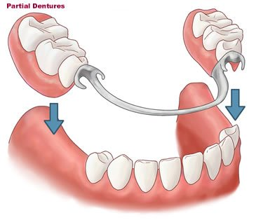 partial dentures small1 - How To Get Rid Of The Taste Of Denture Liners