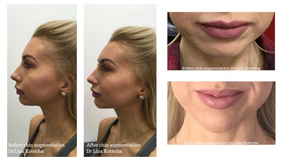 Before and after nonsurgical weak chin augmentation