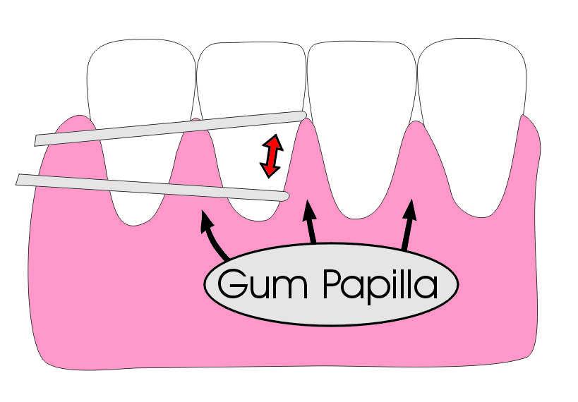 Floss in between your teeth