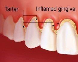 Tartar buildup around tooth Causing gingivitis