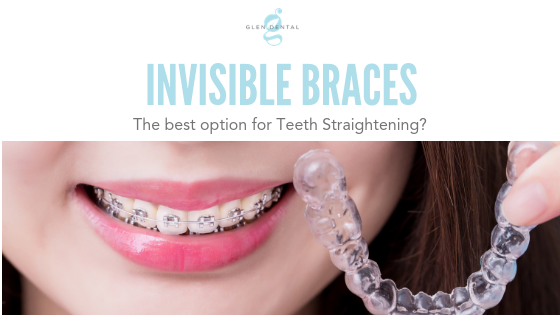 invisible braces the best option for teeth straightening