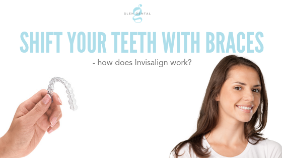 shift your teeth with braces does Invisalign work