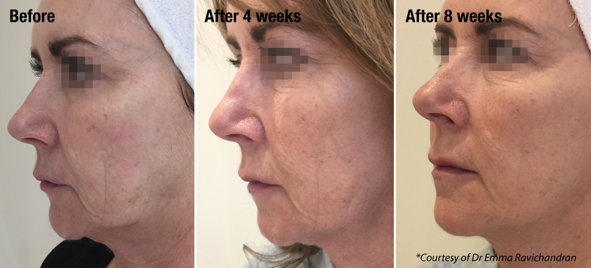 before and after anti-ageing treatment