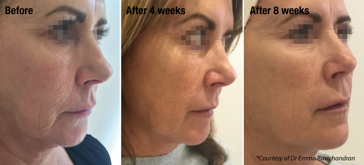 before and after treatment with profhilo