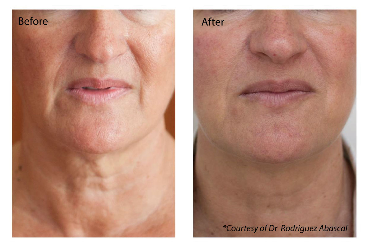 before and after anti-ageing injections