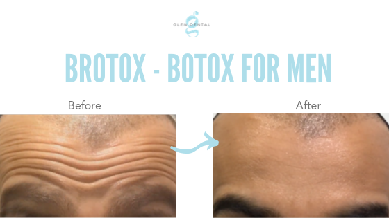 brotox-botox-for-men