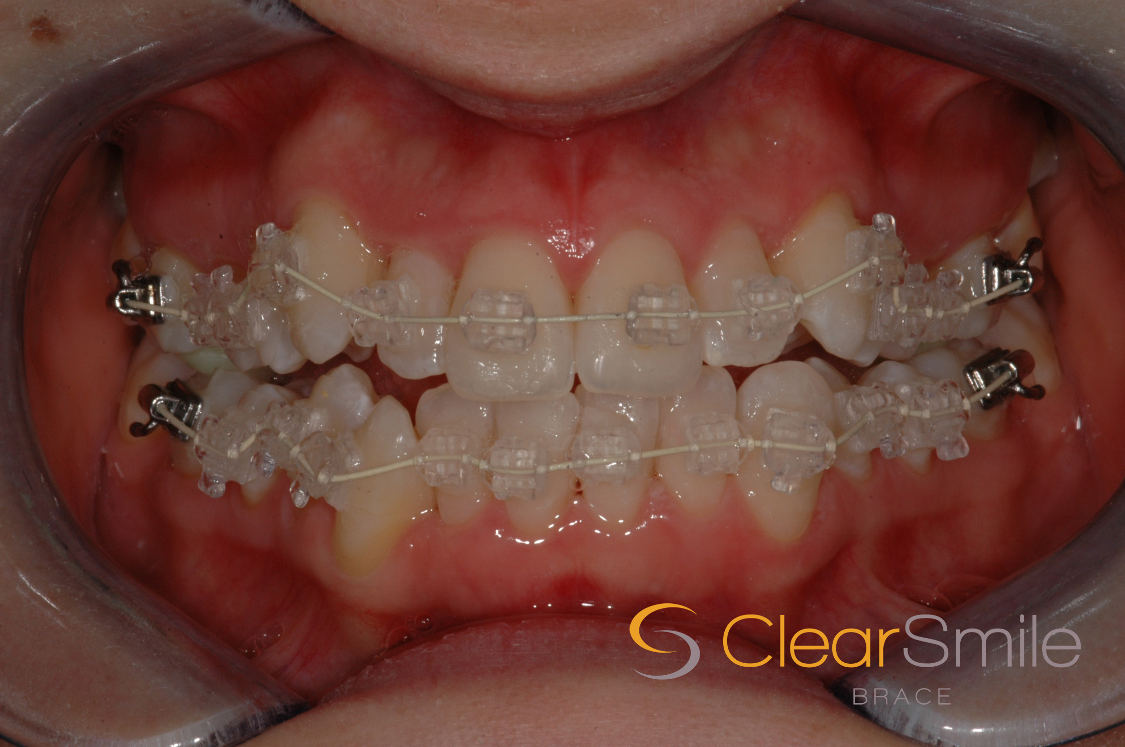 clear smile fixed braces