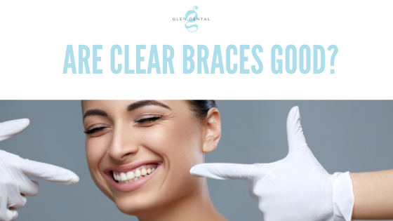 Are clear braces good