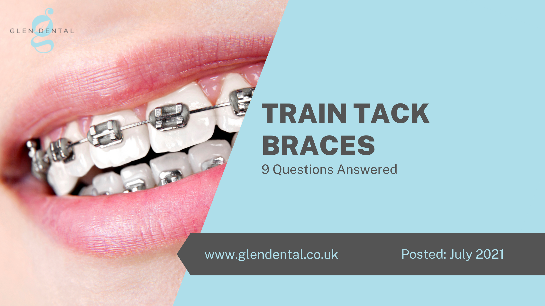 Train Tack Braces - 9 Questions Answered